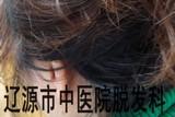女成人葡型斑秃治疗后