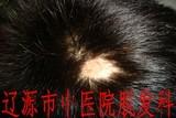 单发性斑秃治疗前