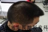 多发性斑秃治疗后