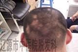 多发性斑秃治疗前