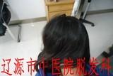 儿童葡型斑秃治疗后