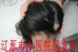 儿童葡型斑秃治疗前